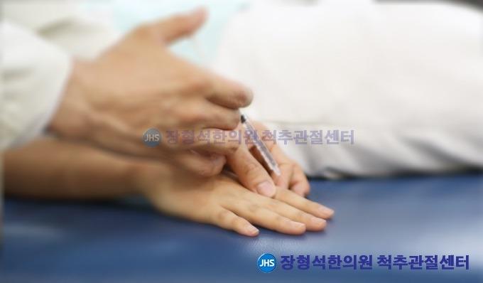[방아쇠수지] 방아쇠수지 원인과 증상, 치료법